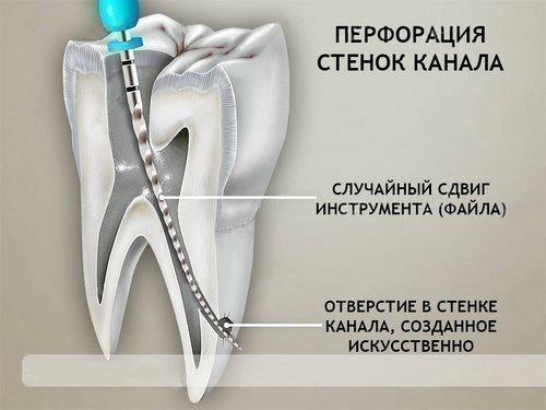 Перфорация зуба при лечении каналов