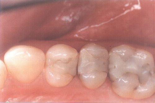Пластмассовая пломба в зубе