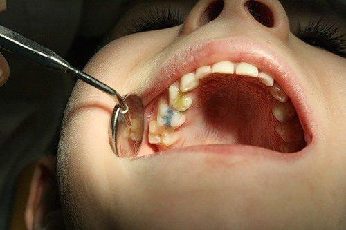 Потемнение зуба приводит к кариесу
