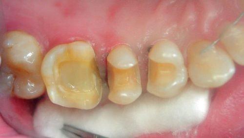 Подготовка к пломбированию зубов