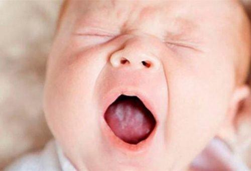 Причина галитоза - молочница