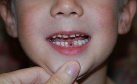 Что будет, если случайно проглотить зуб?