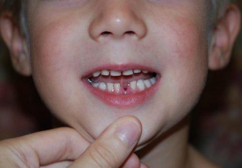 Дети часто глотают выпавшие молочные зубы