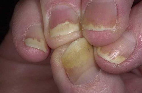 Проявления йодизма на ногтях у взрослого