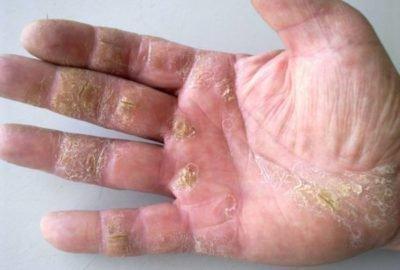 Проявления на коже йодизма