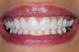 Реставрация зубов фотополимерными пломбами