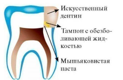 Схема установки временной пломбы