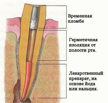 Схема временной пломбы в зубе