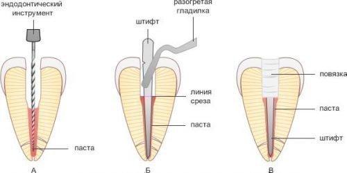 Штифт в зубе для пломбы