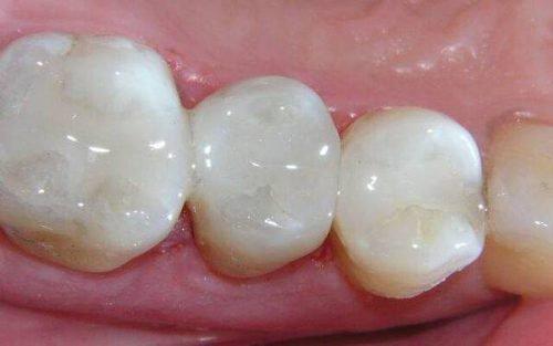 Светополимерные пломбы в зубах