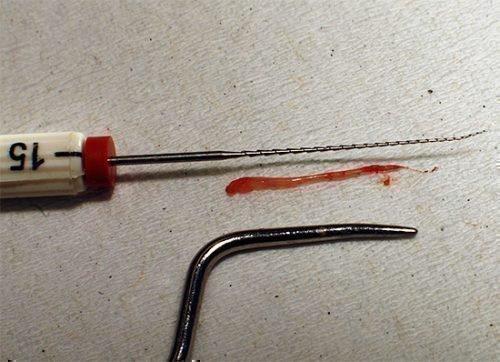 Удаленный зубной нерв