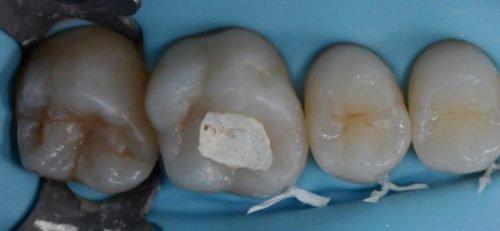 Мышьяк под временной пломбой у зубе