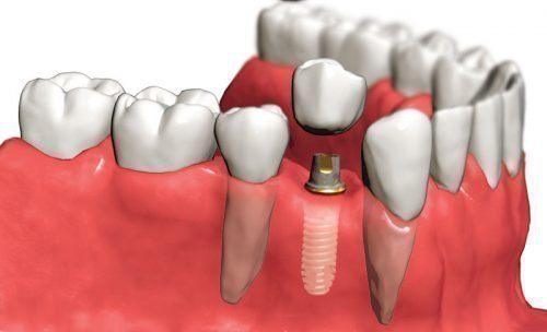 Выпадение зубной коронки