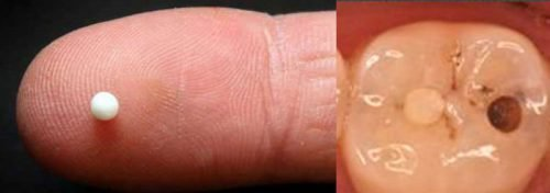Выпавшая пломба из зуба