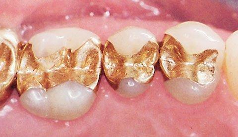Амальгамные пломбы с золотом