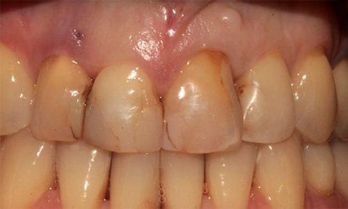Цементные пломбы в передних зубах