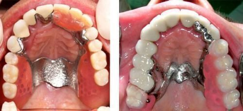 До и после лечения воспаления под протезом