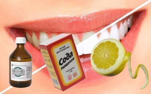 Домашние средства для отбеливания зубов: перекись, сода, лимон
