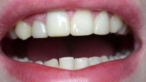 Фотополимерная пломба в передних зубах
