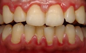 Что делать, если кровоточат десна и появился неприятный запах изо рта