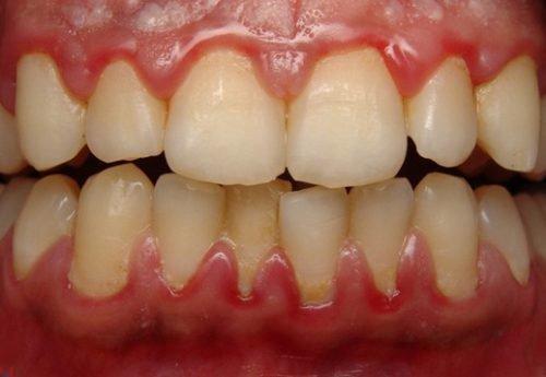 Гингивит десен - причина кровоточивости и запаха