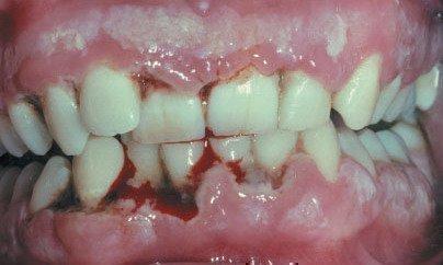 Гингивит Венсана - опасное заболевание десен