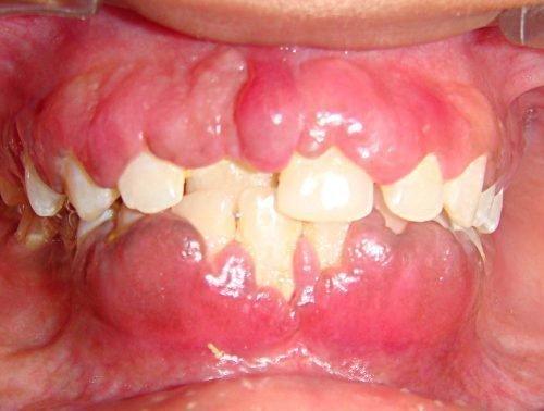 Гипертрофический гингивит у ребенка при неправильном прикусе