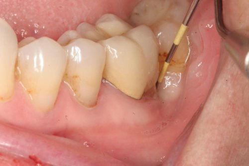 Гнойник сбоку у коренного зуба на десне