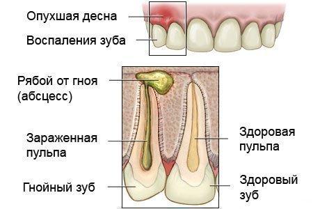 Схема строения гнойника под зубом