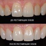 Принцип реставрации передних зубов пломбировочным материалом