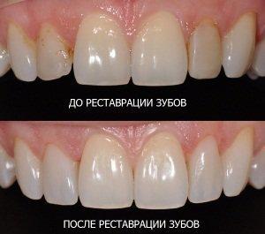 Реставрация эмали передних зубов