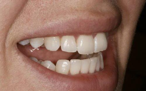 Качественные пломбы в передних зубах