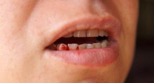 Кровоточивость десен при раке