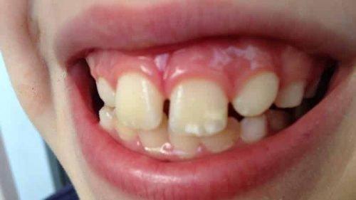 Белые десны - лейкоплакия у ребенка