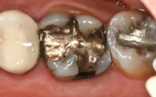 Медная амальгама в зубе