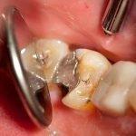 Сколько примерно можно держать мышьяк в зубе