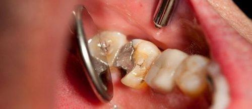 Мышьяк в зубе под пломбой