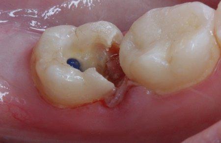 Мышьяковая паста в зубе