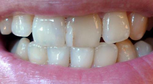 Некачественная пломба в зубах