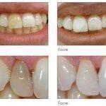 Можно ли отбелить зубы, которые с пломбами