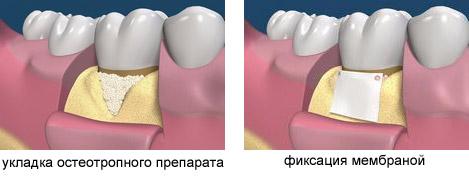 Лоскутная операция на деснах - схема