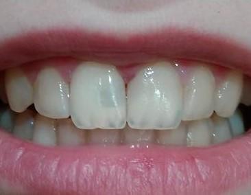 Пластмассовая пломба в переднем зубе
