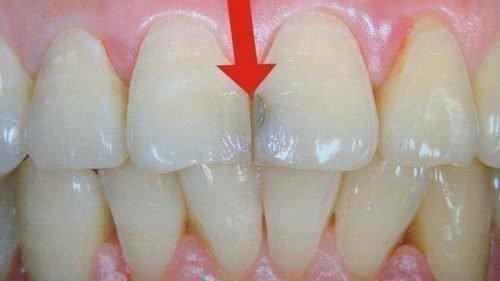 Потемнение пломбы после отбеливания зубов
