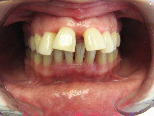 Агрессивная форма пародонтита - потеря зубов