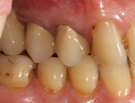 Пришеечный кариес на зубе