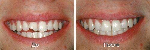 Реставрация сколотого зуба