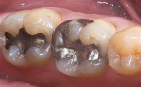 Пломба из стоматологической амальгамы: состав, преимущества и недостатки