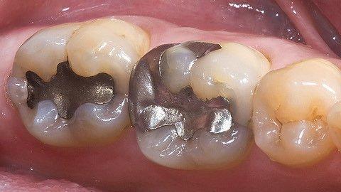 Серебряная амальгама в зубе