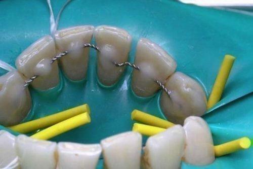 Шинирование зубов - завершающая стадия лечения пародонтита