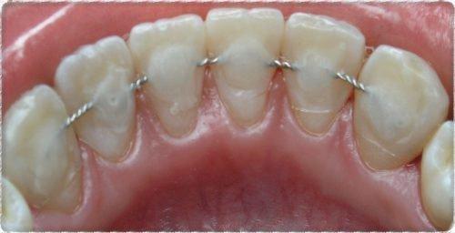 Шинированные зубы